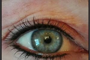 ogen-1