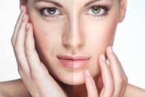huidverbetering-1