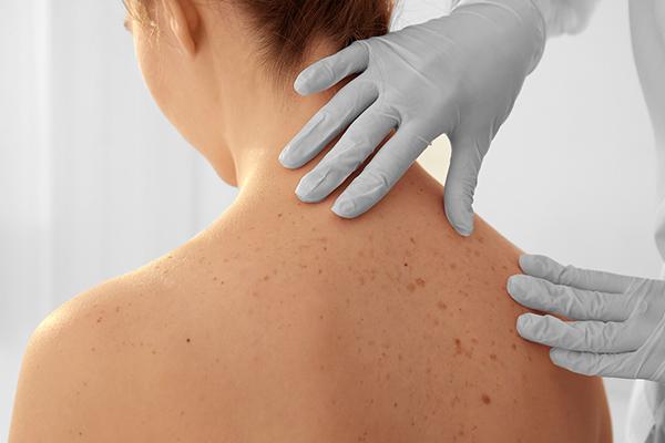 coagulatietherapie